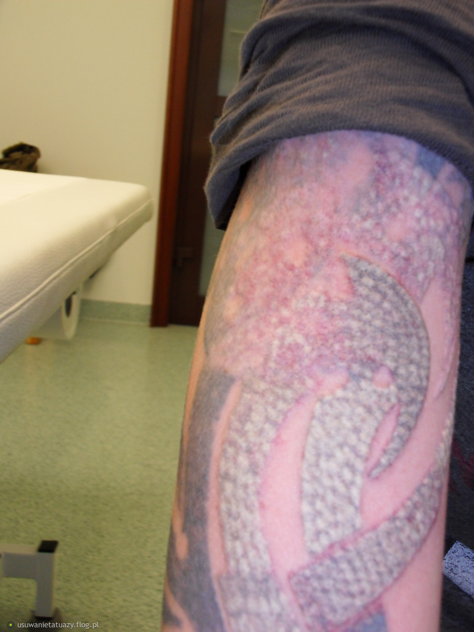 od razu po zabiegu usuwania tatuażu laserem rubinowym w CTL (ufff)
