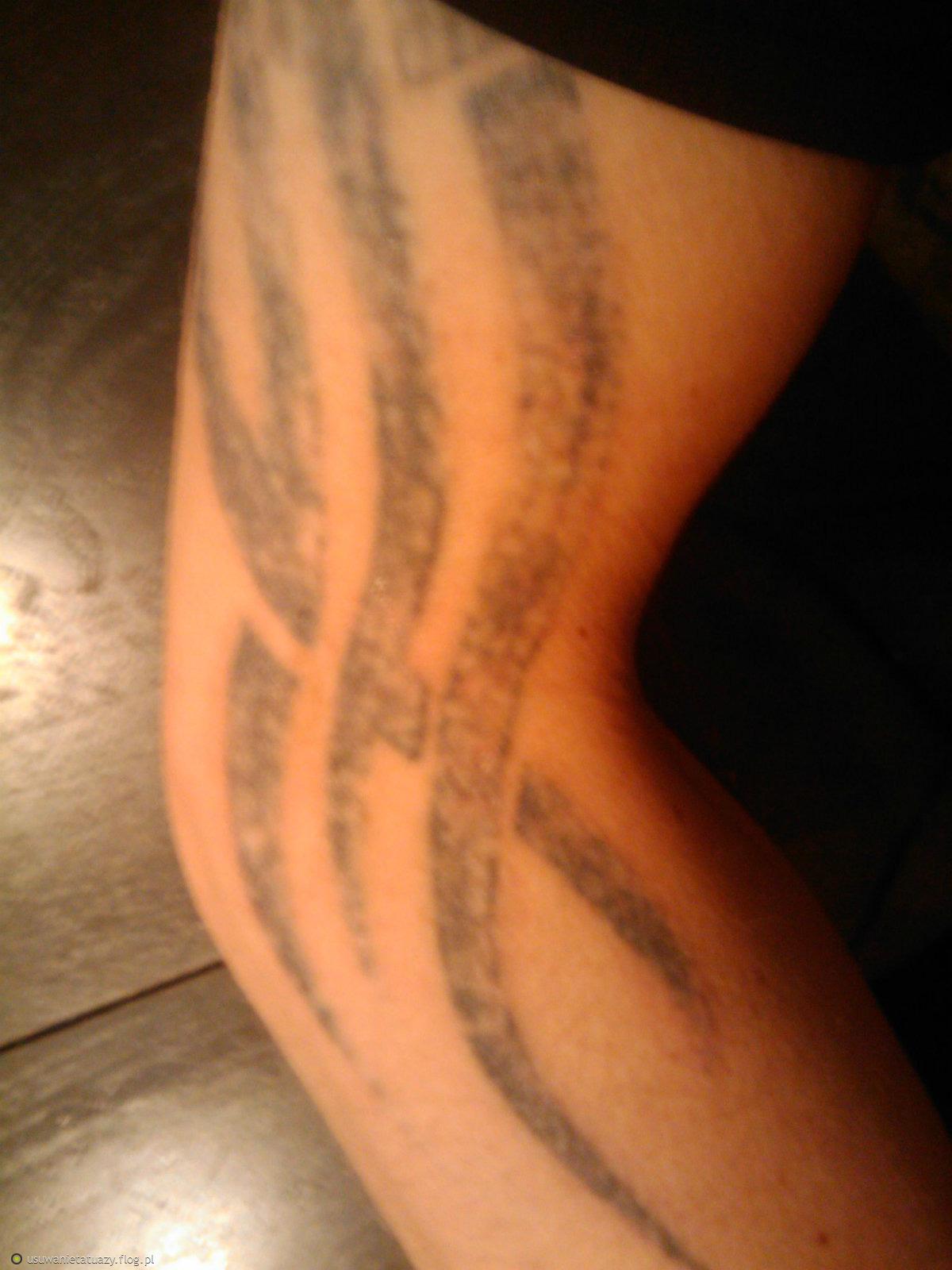 usuwanie tatuażu kolejny zabieg - ręka