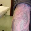 od razu po zabiegu usuwan<br />ia tatuażu laserem rubino<br />wym w CTL (ufff) :: 2 zdjęcia - zrobione w ga<br />binecie, od razu po zabie<br />gu 3 zdjęcia - z domu, po<br />dczas poprawiania opatr